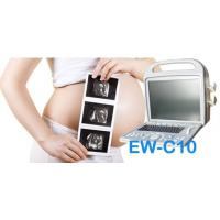 Quality Portable ultrasound machine EW-C10V with Convex probe C3R60 and Linear probe L7L40 for mix practice animals wholesale