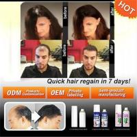 China GMP standard hair loss treatment cure hair loss thoroughly on sale