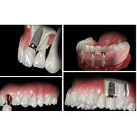 Buy cheap Screw Retained Dental Implant Crown And Bridge For Dental Lab / Hospital Dental Clinic from wholesalers