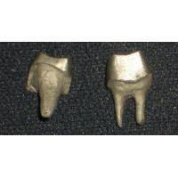 Best Yellow Gold PFM Dental Crown Lab Dental Post And Core Good Strength wholesale