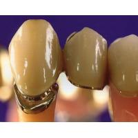 Best Gold Composite Nanogold Captek Crown Tooth Bridge For Dental Clinic High Strength wholesale
