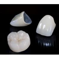 Best Beautiful Dental Crown Lab PFM Bridge And Caps For Teeth No Side Effect wholesale