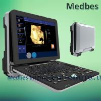China 4D Color Digital Portable Ultrasound Scanner Portable Echocardiography Machine 2D Echo on sale