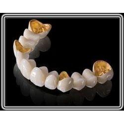 Best Captek Gold Dental Crown Lab On All Teeth Good Biologycial Strong Restoration wholesale