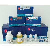 Best Rapid Coagulated Blood Total RNA Extraction Kit Isolation Of RNA From Blood wholesale