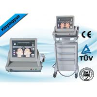 Best Frequency Face Tightening Wrinkle Removal HIFU Equipment For Mouth wholesale