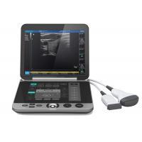 Best Gray Color S880 Portable Ultrasound Scanner Patient Monitoring Devices wholesale