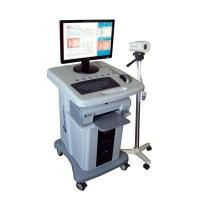 Best Digital electronic colposcope wholesale